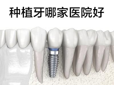 天津口腔医院牙种植-中诺口腔值得信赖