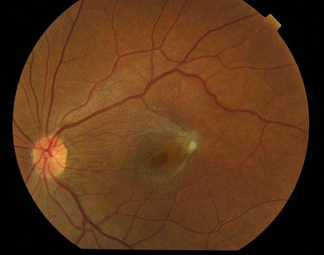 黄斑前膜合并黄斑裂孔.jpg